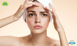 Use Chemical peels that can help with your Adult Acne