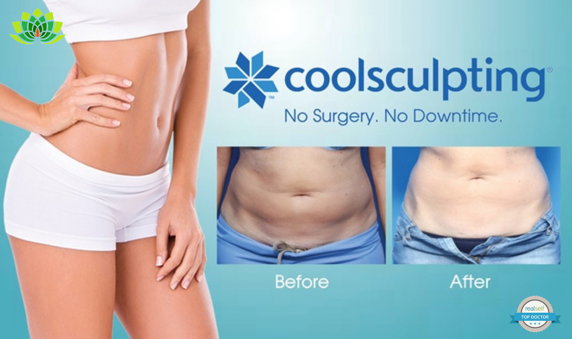 CoolSculpting: completely on-trend as an A-list treatment