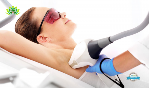 Beginners Guide: Laser Hair Removal